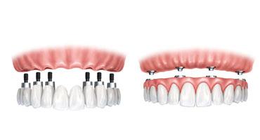 Implant-Náhrada-všech-zubů