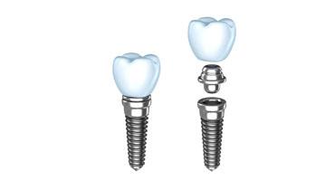 Zložení-implantatů